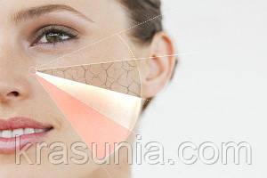 Типы кожи: как правильно определить и ухаживать
