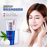 Очищаюча пінка для вмивання проти акне Bioaqua anti-acne, фото 3