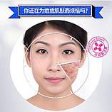 Очищаюча пінка для вмивання проти акне Bioaqua anti-acne, фото 4