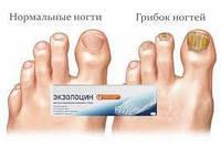 100 % ОРИГИНАЛ Экзолоцин Гель от грибка ногтей и стоп .Останавливает распространение грибка, уничтожая его