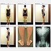 Система видеографии 2D для діагностики постави тіла та ходи