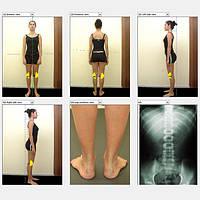 Система видеографии 2D для діагностики постави тіла та ходи, фото 1