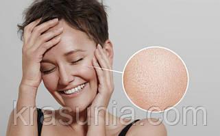 Жирная кожа лица: причины и особенности ухода