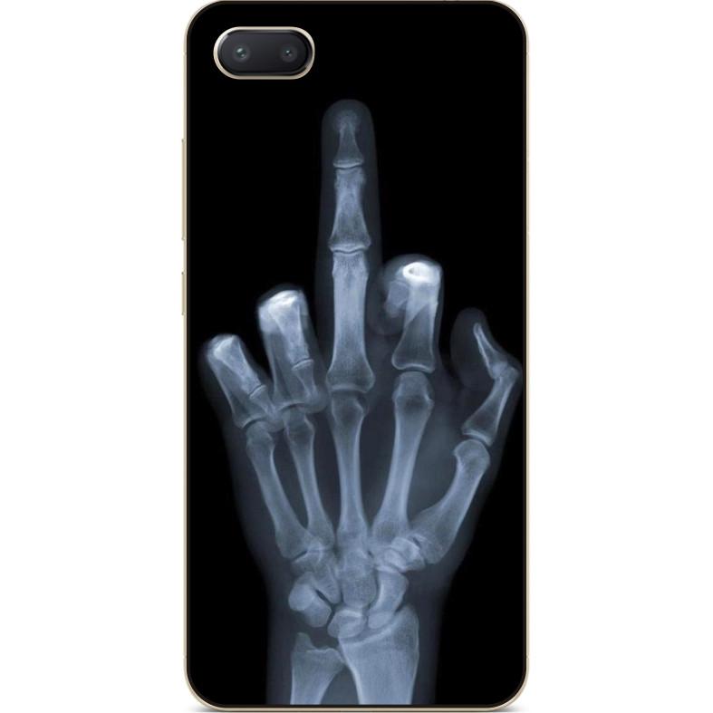 Силиконовый чехол  для Iphone 7 plus с рисунком Рентген