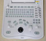 Ультразвуковой портативный сканер Mindray DP-3300, фото 3