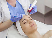 Фракционная мезотерапия – один из лучших методов восстановления молодости кожи.