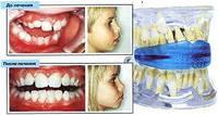 Трейнеры и аппараты компании Creative Dental