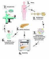 3D-Підшлункова здатна позбавити людину від діабету