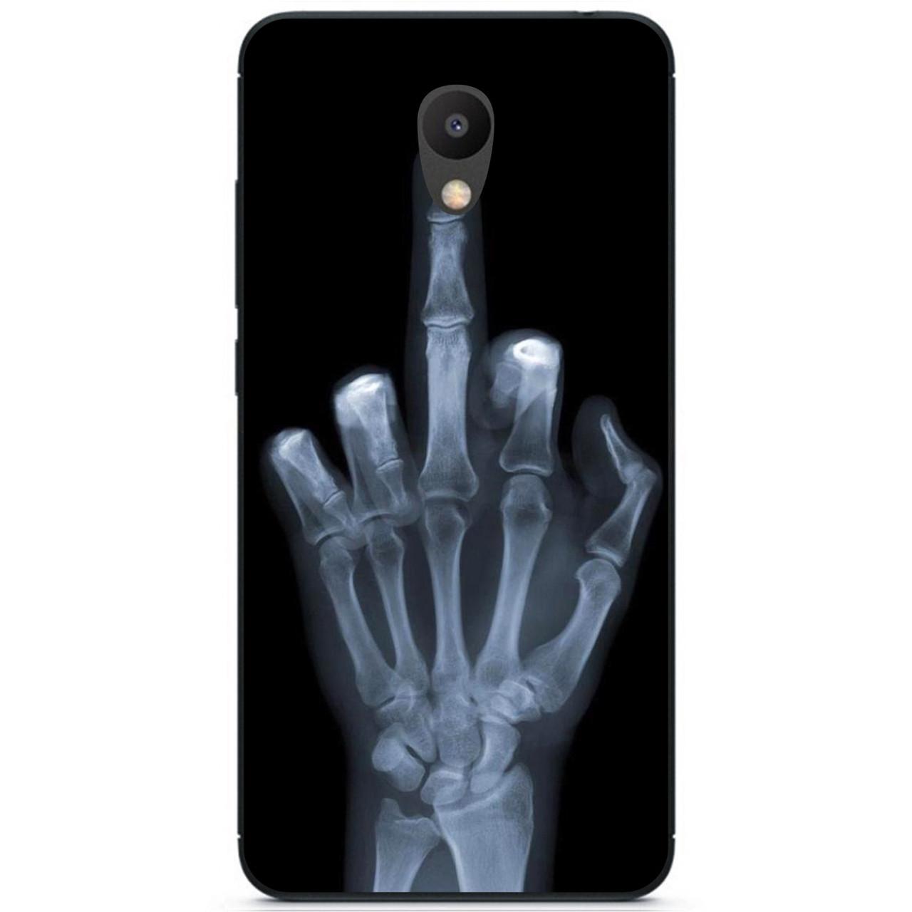 Силиконовый бампер чехол для Meizu M6s с рисунком Рентген