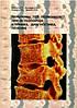 Ветрилэ, Морозов, Кулешов: Переломы тел позвонков при остеопорозе. Клиника, диагностика, лечение