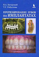 Валерий Загорский, Татьяна Робустова Протезирование зубов на имплантатах