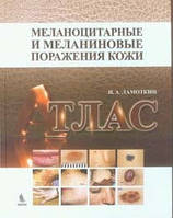 Ламоткин И.А. Меланоцитарные и меланиновые поражения кожи: атлас