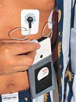 Система мониторирования по Холтеру МТ 101/200 2-х канальная