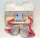 Дефібрилятор ДКІ-Н-02 Ст з вбудованим акумулятором, фото 2
