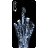 Силиконовый чехол для Samsung M20 с рисунком Рентген