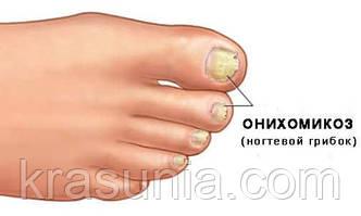 Грибок ногтевых пластин: причины, симптомы и лечение