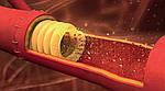 Американські вчені знайшли застосування 3D-друку цукром в судинної хірургії