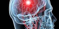 В Японии нашли простой способ оценки здоровья мозга