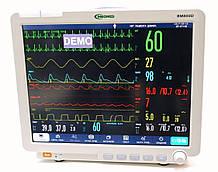 """Монітор пацієнта С86 (""""БИОМЕД"""" ВМ800D 15"""")"""