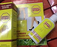Шишка STOP крем от шишек на больших пальцах ног, крем от шишек, шишка стоп, шишкастоп, вальгусная деформация