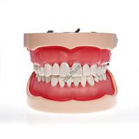 Модель тренировочная со съемными зубами HTS-A10 200H, фото 1