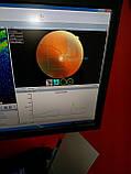 Оптический когерентный томограф TOPCON 3D OCT-1000, фото 3