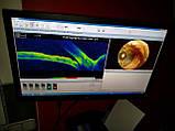 Оптический когерентный томограф TOPCON 3D OCT-1000, фото 9
