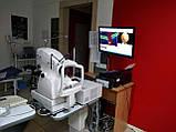 Оптический когерентный томограф TOPCON 3D OCT-1000, фото 2