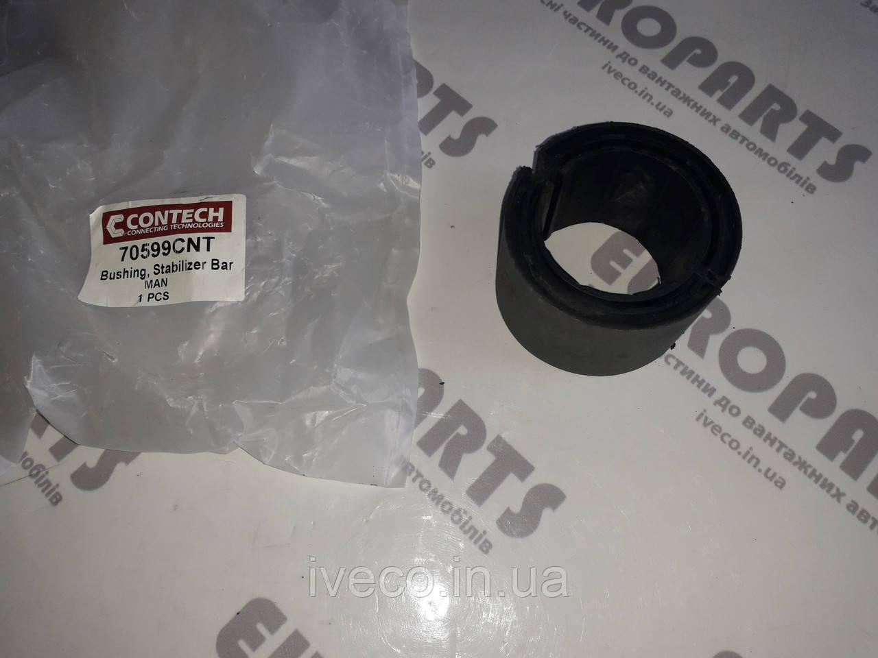 Втулка стабилизатора металл-резина MAN L 2000, TGL/TGM, TGA/TGS/TGX, 81437040077