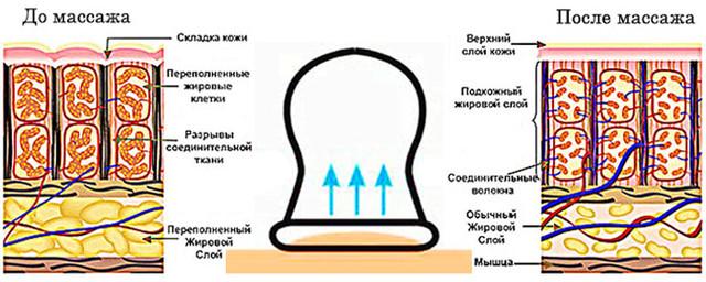 Изменения в жировой ткани после баночного массажа