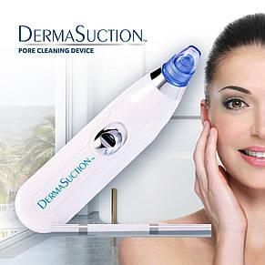 Вакуумный очиститель пор лица Derma Suction, пороочиститель, фото 2