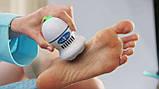 Электрическая пемза для ног , прибор для удаления мозолей Pedi Vac, фото 6