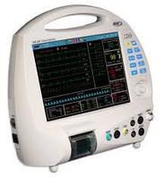 Монитор пациента ЮМ 300-12