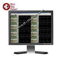 Монитор пациента UCS 1000