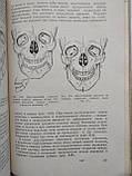Хирургия зубов и полости рта Г.А.Васильев , фото 3