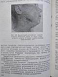 Хирургия зубов и полости рта Г.А.Васильев , фото 6
