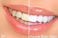 Отбеливатель зубов White light Blue ZX, фото 7