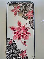 Накладка с рисунком   Guipure Desing для Xiaomi Mi 5X / MI 1A