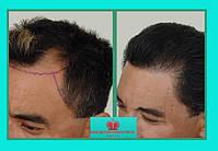 Система натуральных волос Размер основы 10х13 см Длинна волос до 10 см Изготовлено по индивидуальному заказу из неокрашенных славянских волос. Цена: 300$ по курсу