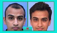 Система натуральных волос Размер основы 10х13 см Длинна волос до 10 см Фабричное стандартное изготовление из волос европейского, славянского типа РЕМИ. Цена: 200$ по курсу