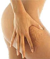 10 «НЕТ»  для предотвращения возникновения целлюлита!