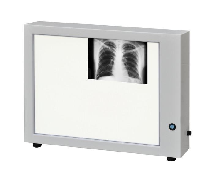 Негатоскоп нт-86м медицинский