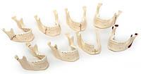 Виды переломов нижней челюсти (комплект из 8 моделей) (5х9х9 см/ 0,36 кг)Н05 Праймед