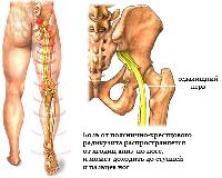 Лечение Радикулита и других заболеваний позвоночника