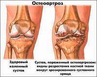 Лечение Артроза(Остеоартроза) и других заболеваний суставов