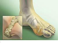 Лечение Подагры(халюс вальгус)