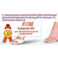 Valgus Pro против шишек на ноге, фото 2