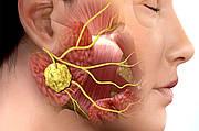 Программа борьбы с ангиной (или как встать на ноги за неделю) - полноценная программа на основе натуральных препаратов