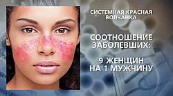 Системная Красная Волчанка, симптомы и лечение БАД НСП.