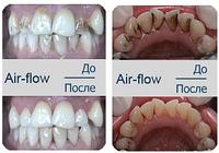 Профессиональная чистка зубов + Air Flow